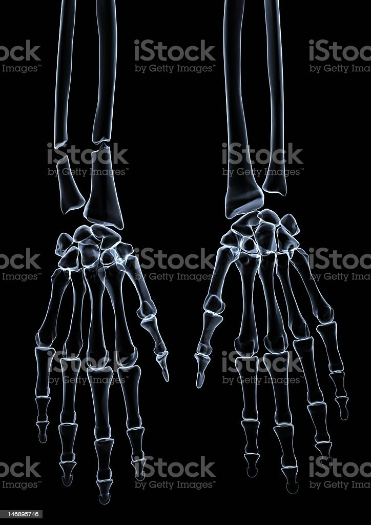 Hand roentgen stock photo