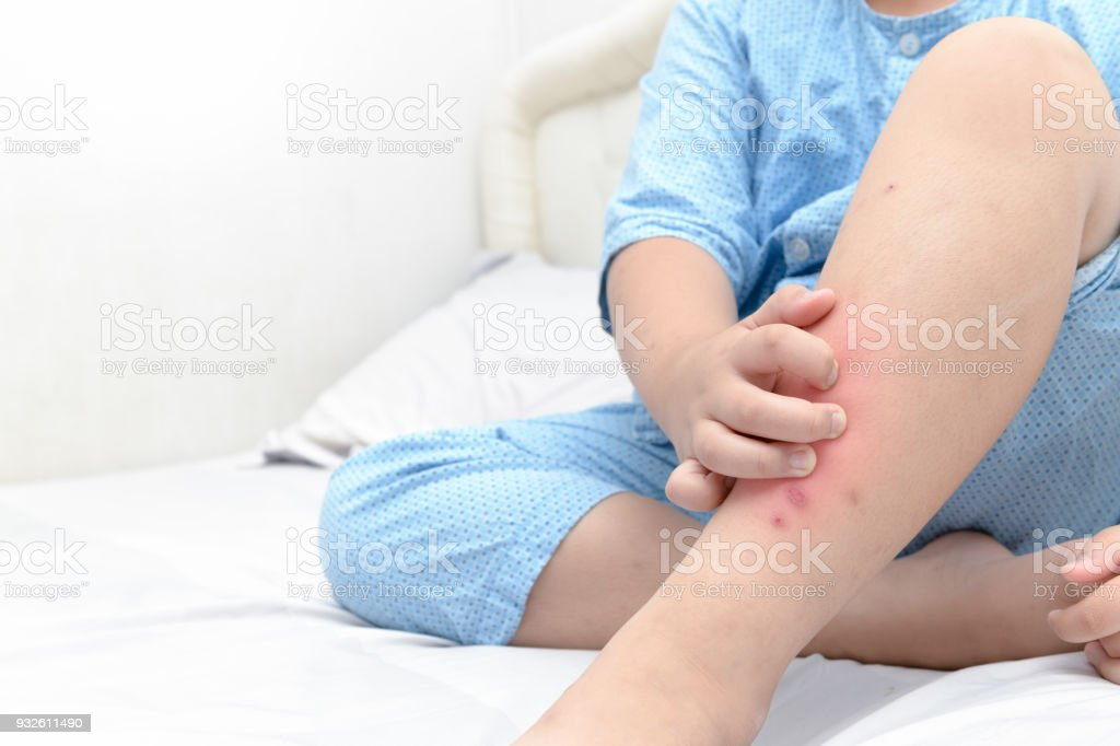 Hand scratching ,legs of fat boy with swelling spot stock photo