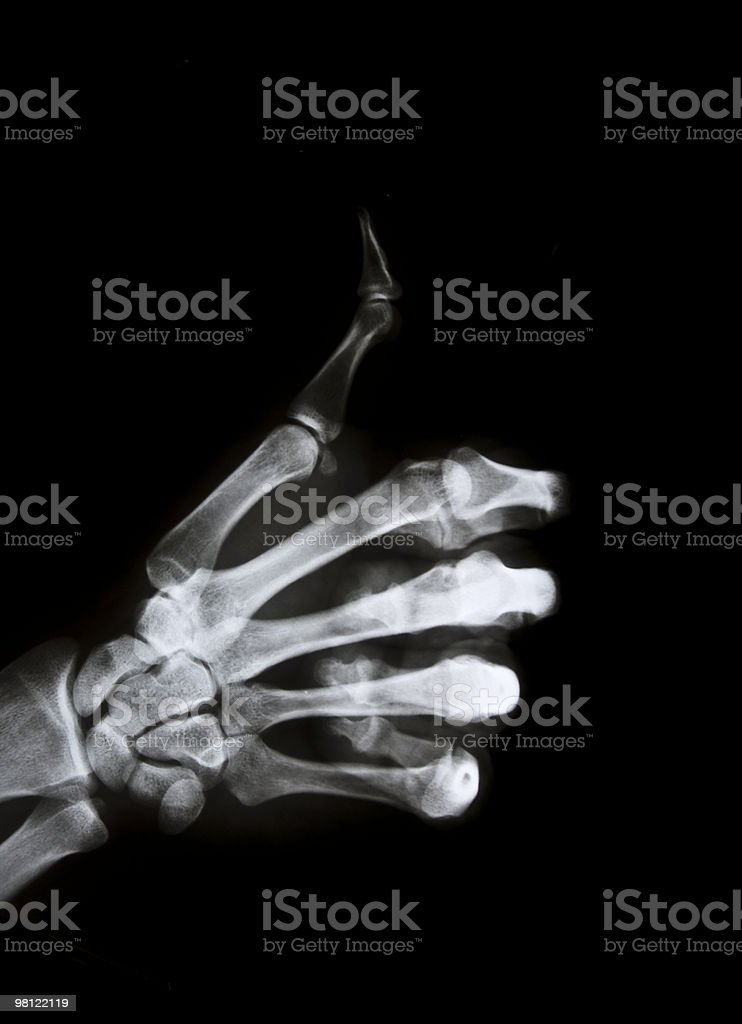 Hand sign x-ray royalty-free stock photo