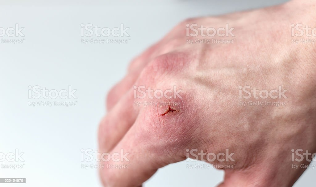 hand with a paper cut on the knuckle. stock photo