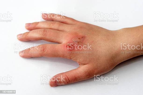 Hand with a third degree burn after fire damagePlease see some similar pictures from my portfolio: