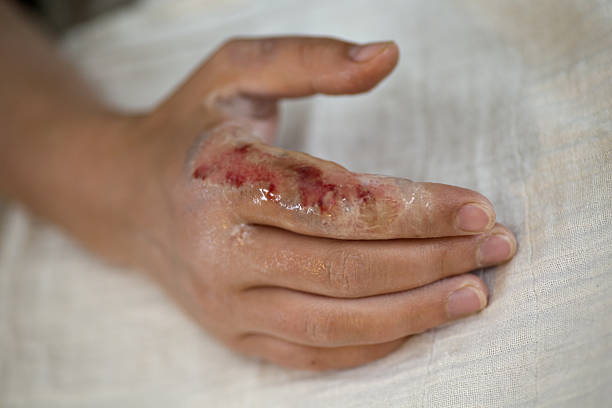 hand with a third degree burn after fire damage - burning stock pictures, royalty-free photos & images