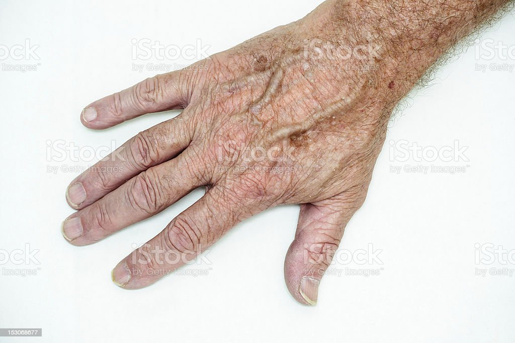 Hand with age spots stock photo
