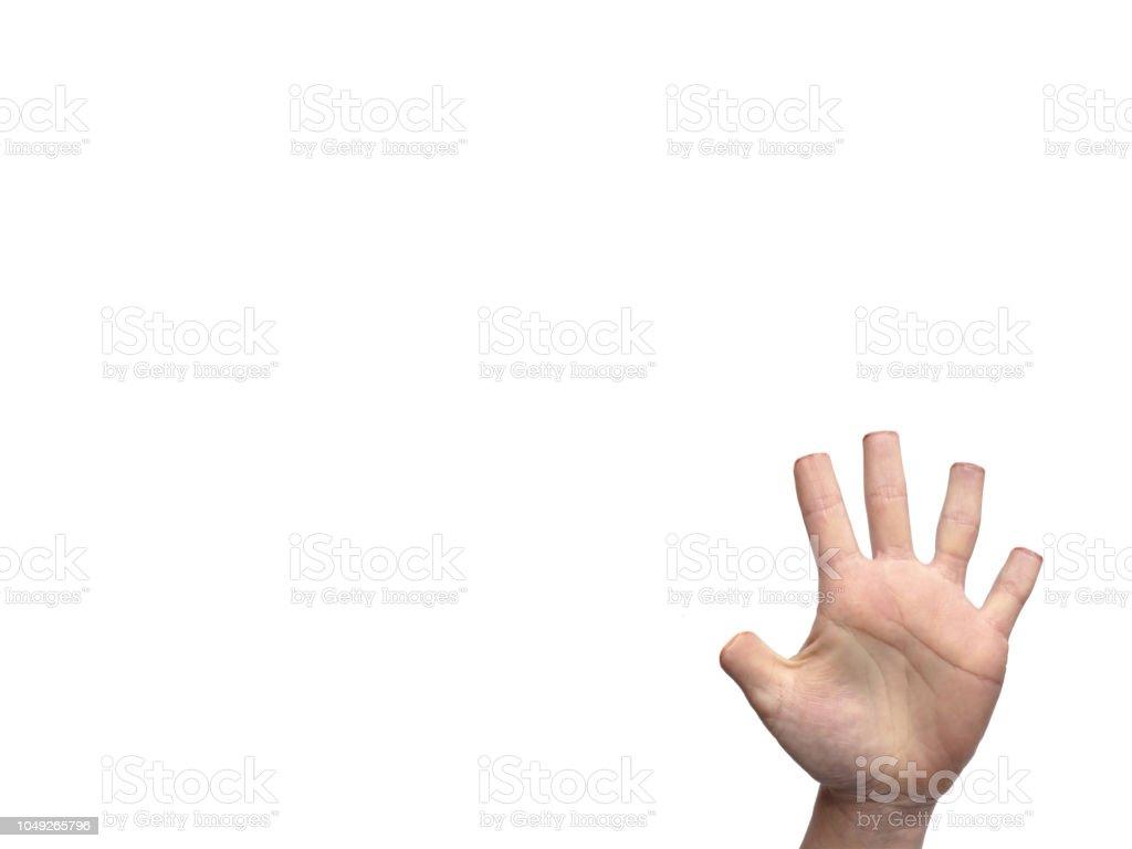 Hand mit amputierten Finger isoliert auf weiss Darstellung declawing bei Katzen – Foto