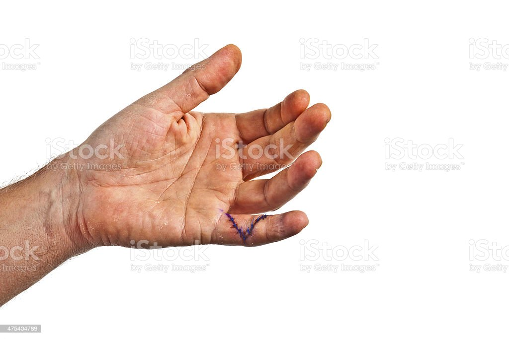 Hand With An Operation Wound At The Small Finger Stock Photo Download Image Now Istock