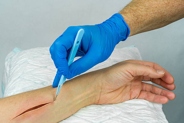 hand with medical glove holding a scalpel making an incision. - open wounds stock photos and pictures