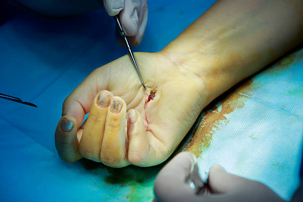 hand with open wound - open wounds stock photos and pictures