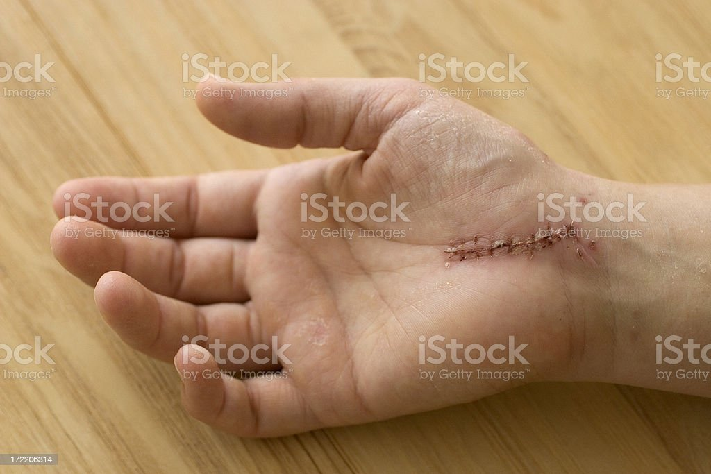 Hand with scar after surgery stock photo