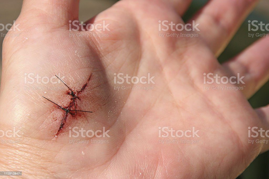 Hand with stitches stock photo