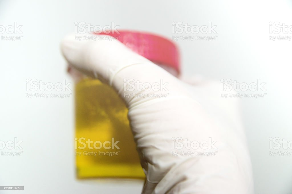 hand with urine container stock photo