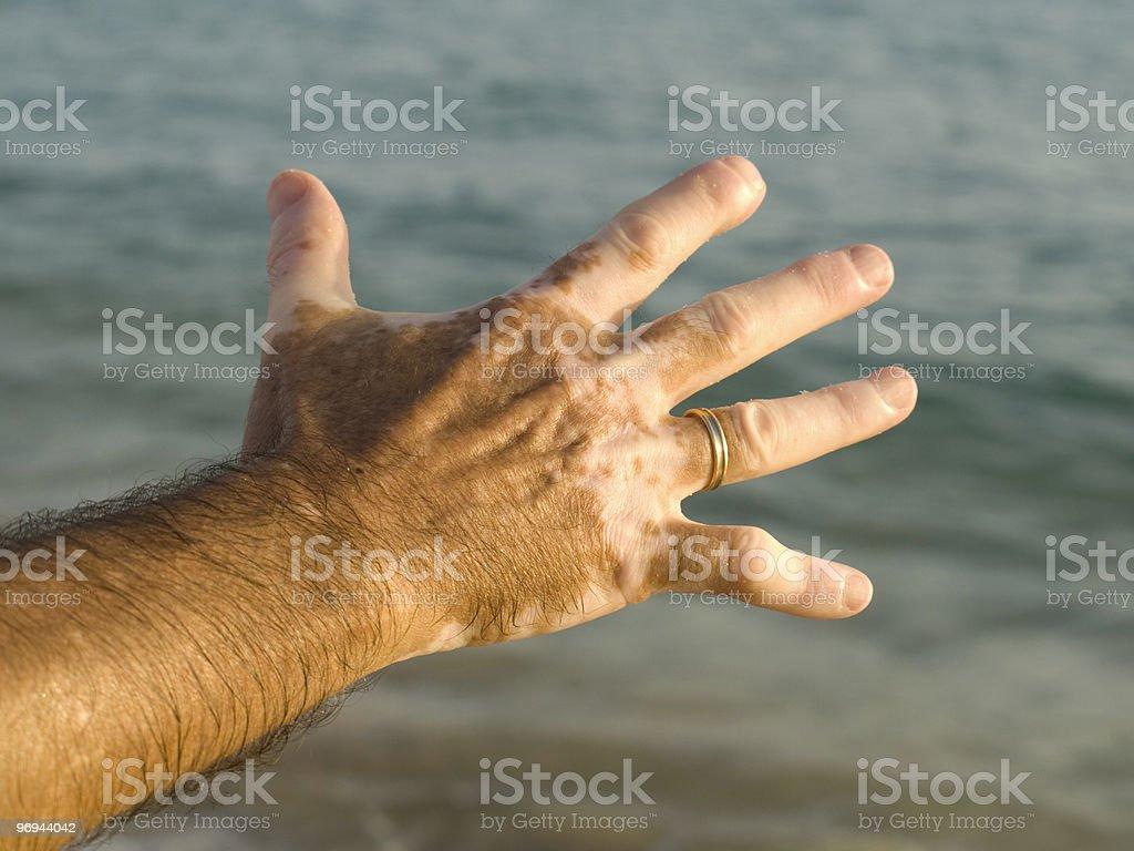 Hand with Vitiligo royalty-free stock photo