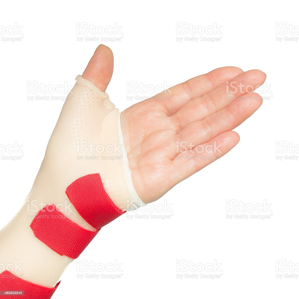 Hand with wrist and thumb splint stock photo