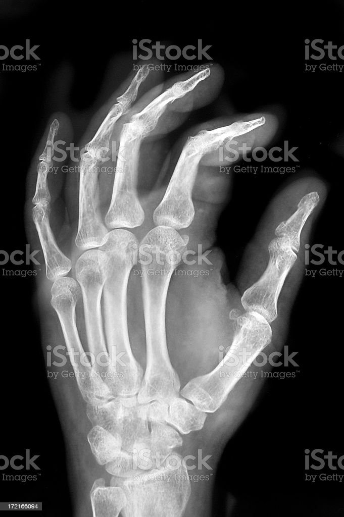 Hand X-ray stock photo