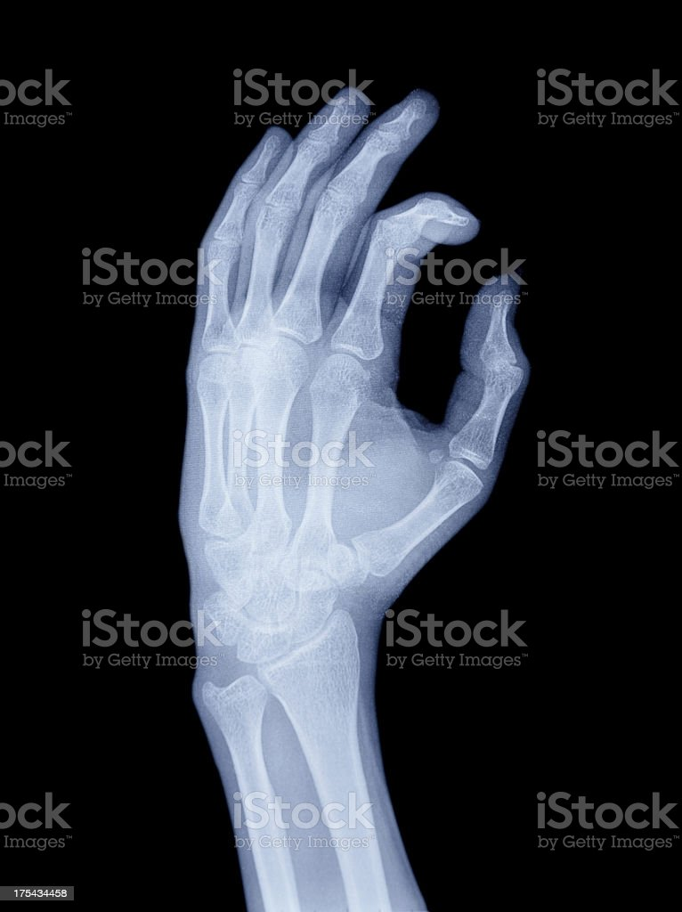 Hand Xray Stock Photo More Pictures Of Anatomy Istock