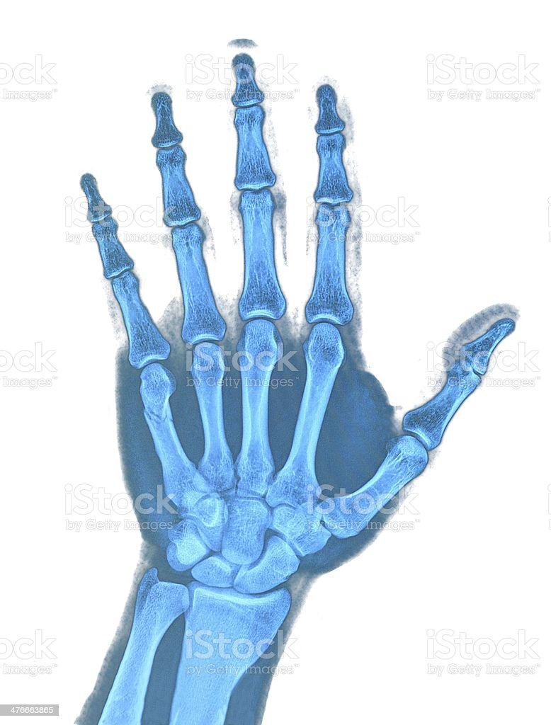 Hand x-ray royalty-free stock photo