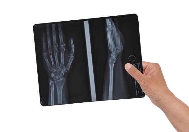 Hand X-ray stock photo