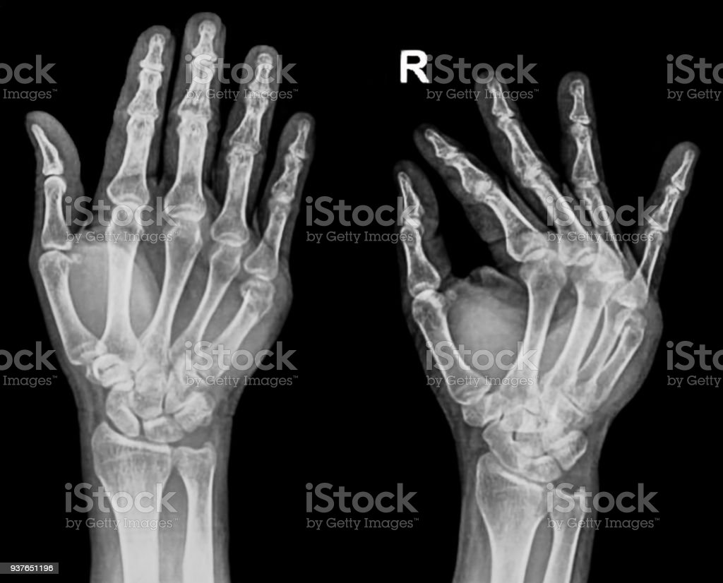 Hand Xray Show The 5th Metacarpal Fracture Stock Photo More
