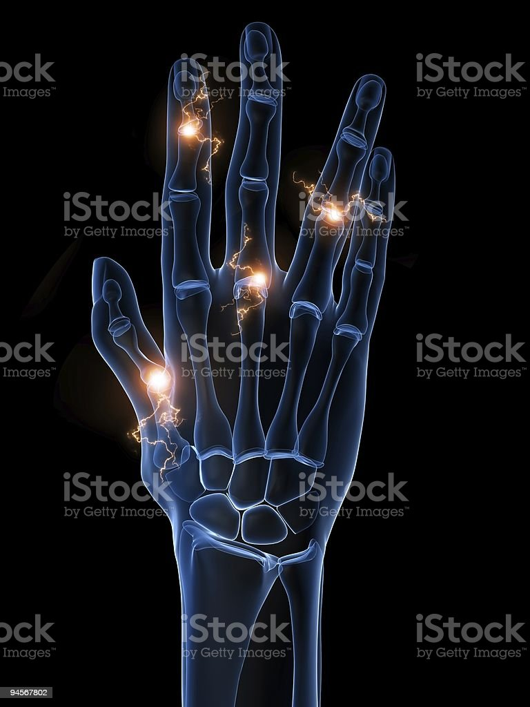 Hand X-ray showing arthritis with glowing lifts stock photo