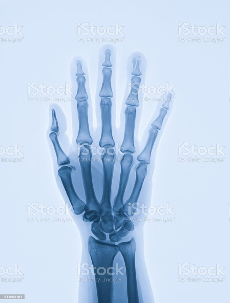 Hand x-ray shows distal phalanx of ring finger fracture stock photo