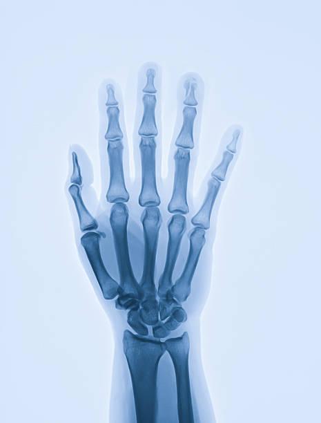 hand zeigt distale phalanx von x-ray ringfinger knochenbruch - skelett hand stock-fotos und bilder
