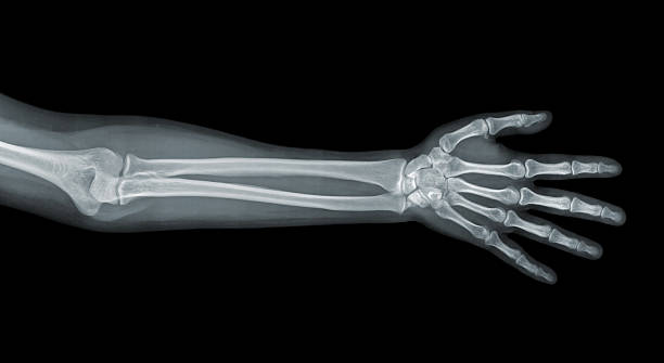 Hand x-ray view stock photo