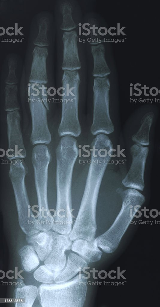 Hand Xray With Fracture Stock Photo More Pictures Of Anatomy Istock