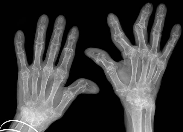 hand xrays showing advanced rheumatoid arthritis stock photo
