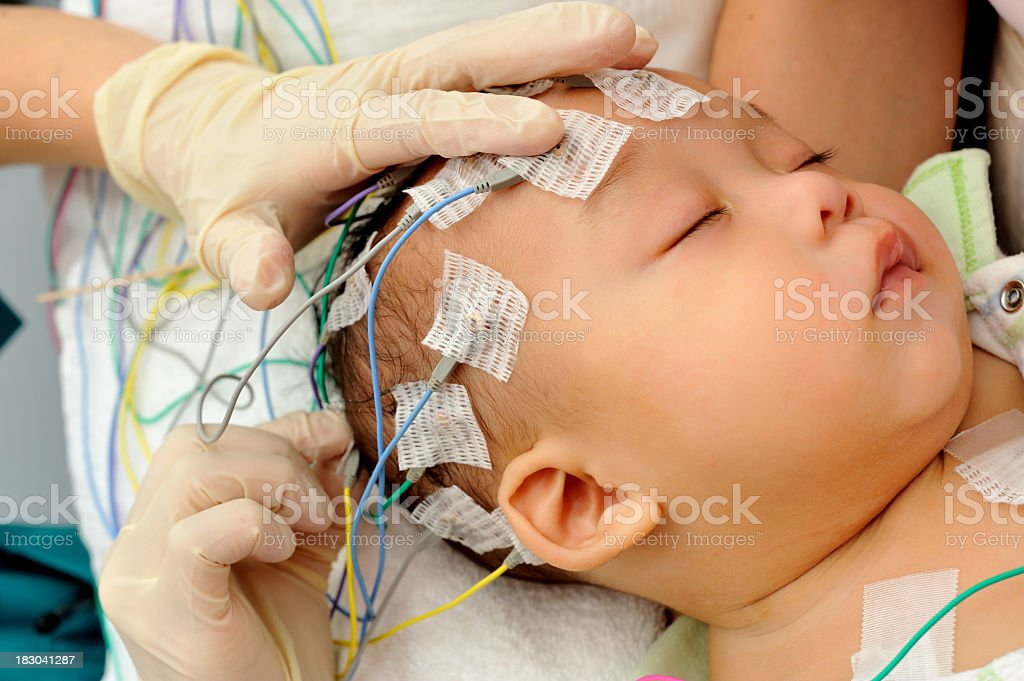 Hands applying electrodes to baby for electroencephalography royalty-free stock photo