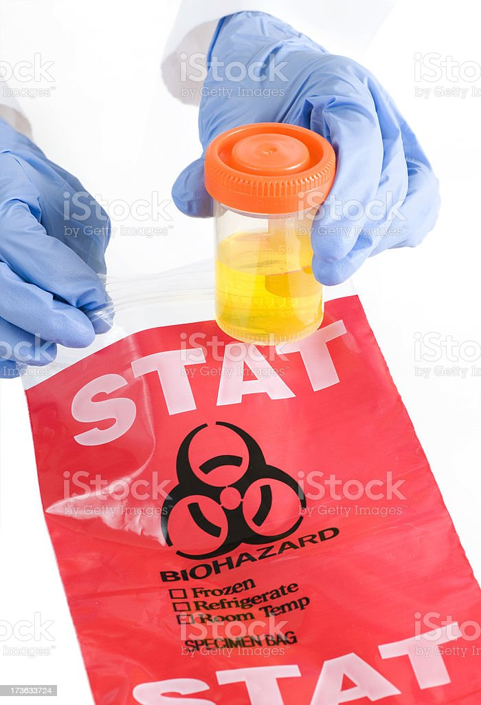 Hands Holding Urine Sample and Bag stock photo