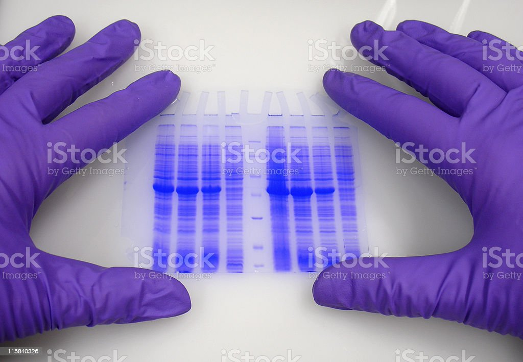 Hands in protective gloves hold blue-stained electrophoresis gel. stock photo