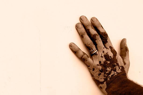 Hand's man affected by vitiligo stock photo