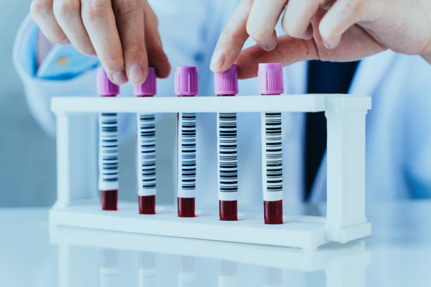 Hands of a lab technician with blood test sample tubes in a row for laboratory blood analysis stock photo