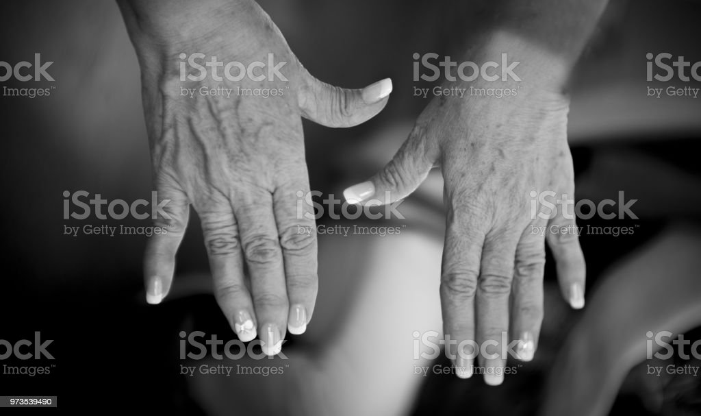Hands of a middle aged woman with problems of rheumatism, osteoarthritis and skin blemishes stock photo