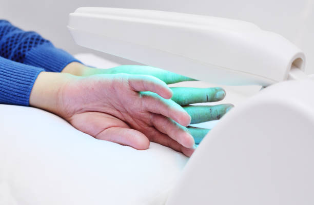 hands of a patient with psoriasis close-up under an ultraviolet lamp hands of a patient with psoriasis close-up under an ultraviolet lamp. Light therapy, phototherapy irradiation stock pictures, royalty-free photos & images