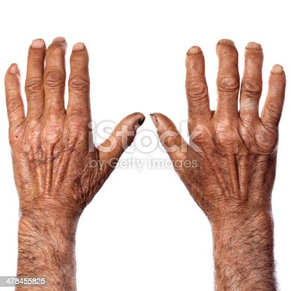 istock Hands of agricultural worker 478455825