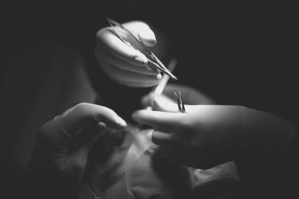 Hände des Arztes mit Werkzeug – Foto