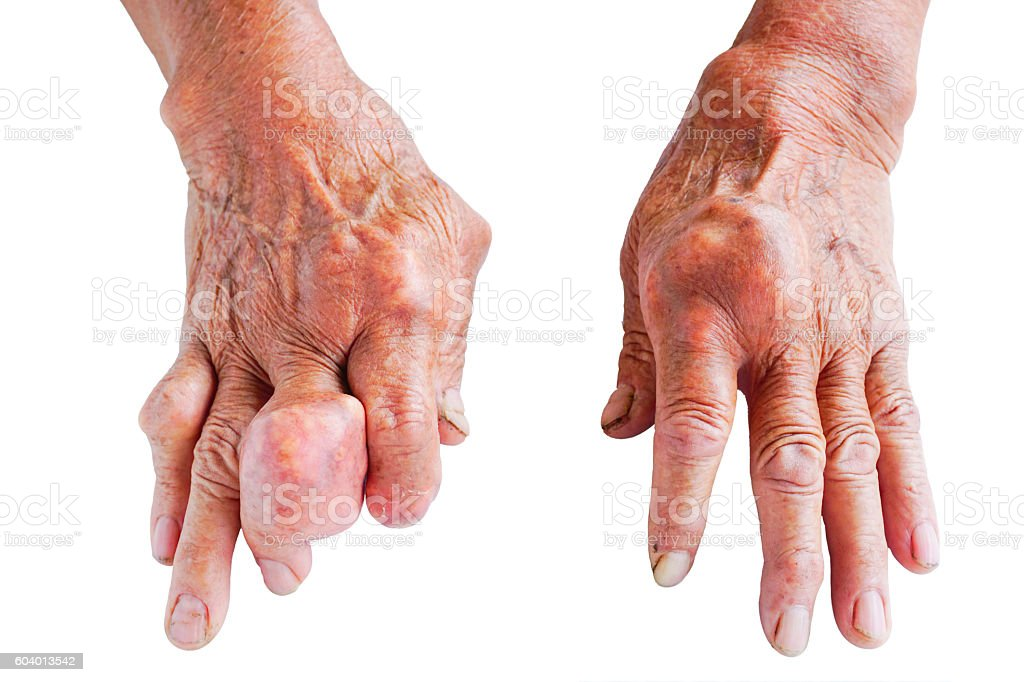 hands of gout patient stock photo