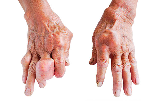 hands of gout patient hands of gout patient  Isolated on white. gout stock pictures, royalty-free photos & images