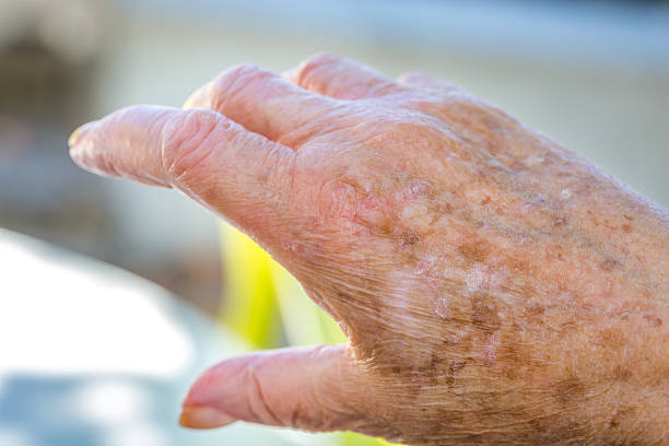 hands of old woman with skin problems stock photo