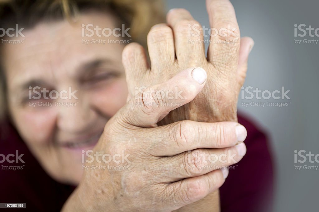 Hands Of Woman Deformed From Rheumatoid Arthritis stock photo