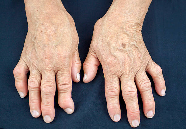 hands of woman deformed from rheumatoid arthritis - disfigure stock pictures, royalty-free photos & images