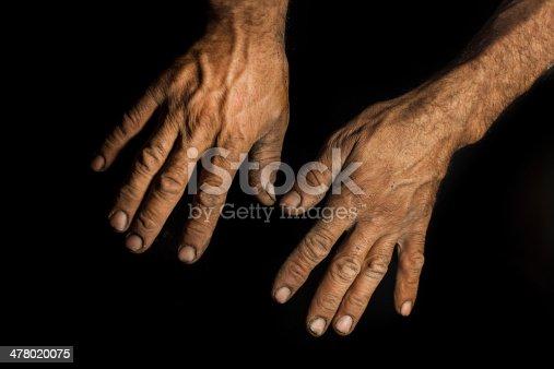 istock Hands 478020075