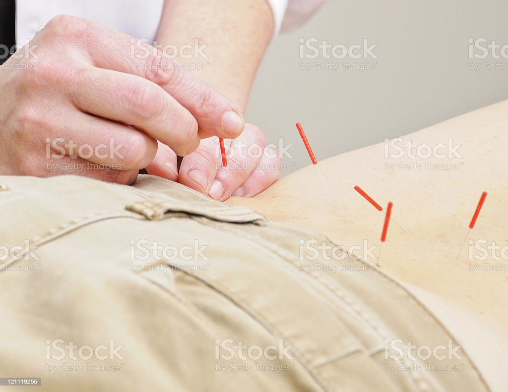 Hands Putting Acupuncture Needles In Back of Patient royalty-free stock photo