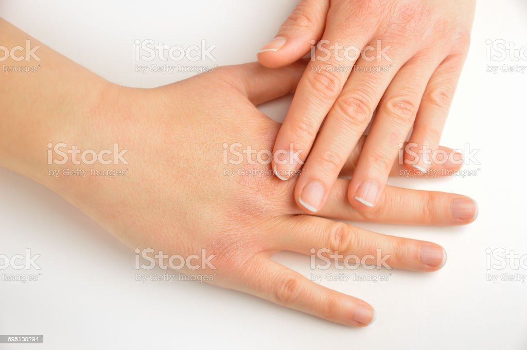 hands touching with dry skin stock photo