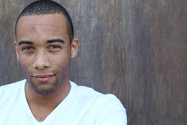 Beau jeune homme ethnique avec soin du visage acné - Photo
