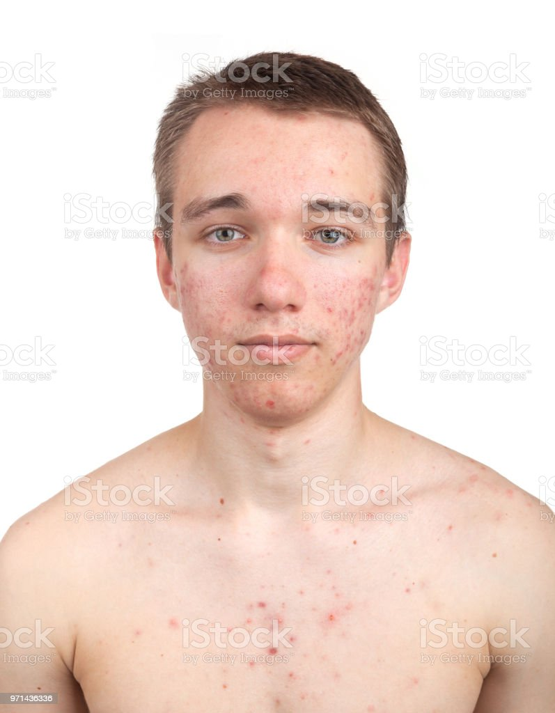 Handsome young man with skin problem stock photo