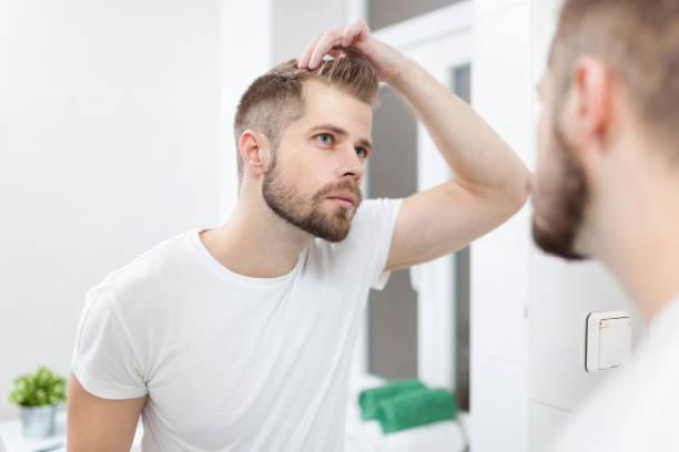 Gut aussehender junger Mann besorgt über hairloss – Foto