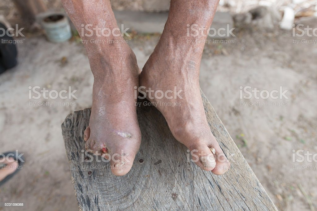 Hansen's disease,closeup hands of old man suffering from leprosy stock photo