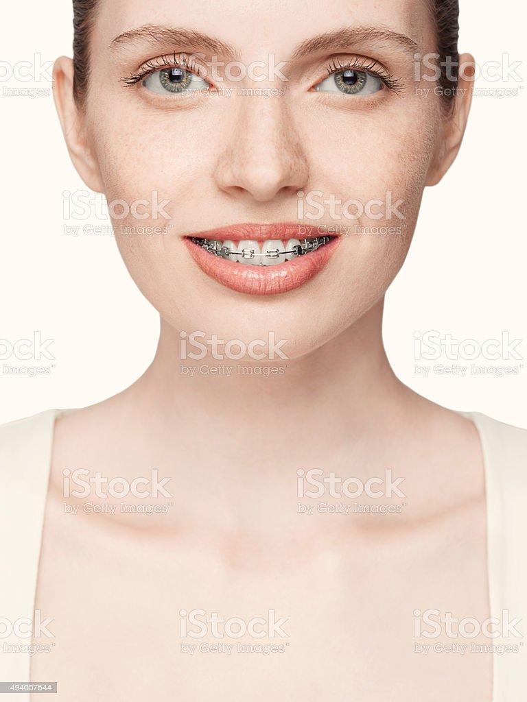 Feliz hermosa Chica con aparatos de ortodoncia - foto de stock