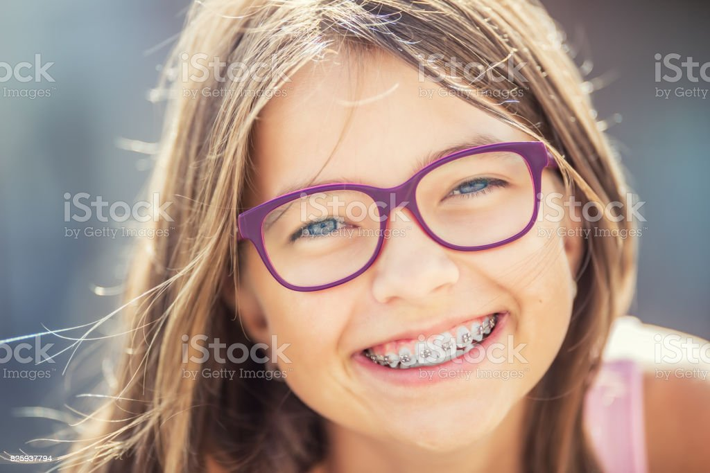 Happy smiling girl with dental braces and glasses. Young cute caucasian blond girl wearing teeth braces and glasses стоковое фото